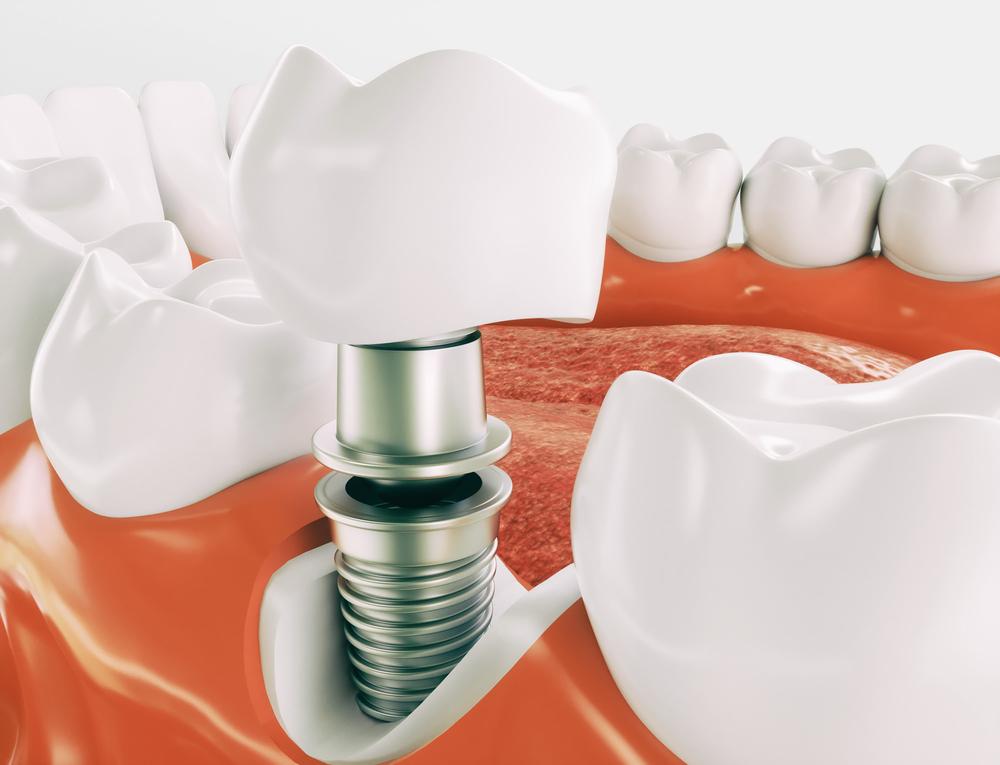 implant zeba
